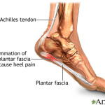 Plantar Fasciitis – The Pain In The Heel