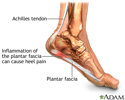 what causes plantar fasciitis